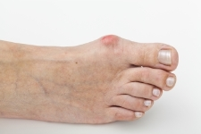 Whitestone Podiatry treats bunions