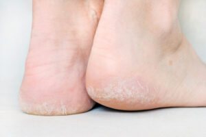 Callus Foot Treatment